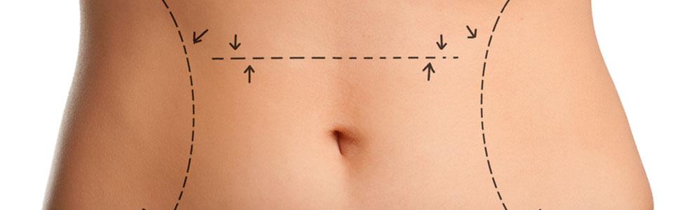 liposukcja - plastyka brzucha